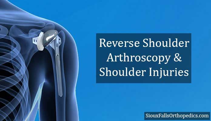 The process for reverse shoulder arthroscopy is reverse to that of the normal shoulder replacement surgery.