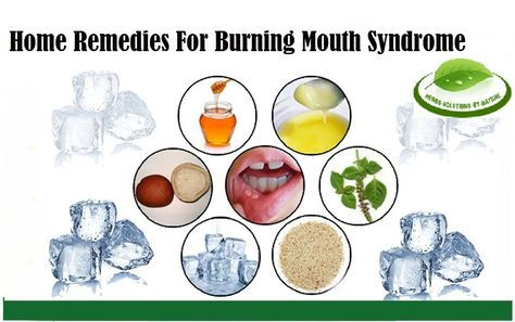 7 Home Remedies For Burning Mouth Syndrome - Herbs Solutions By Nature