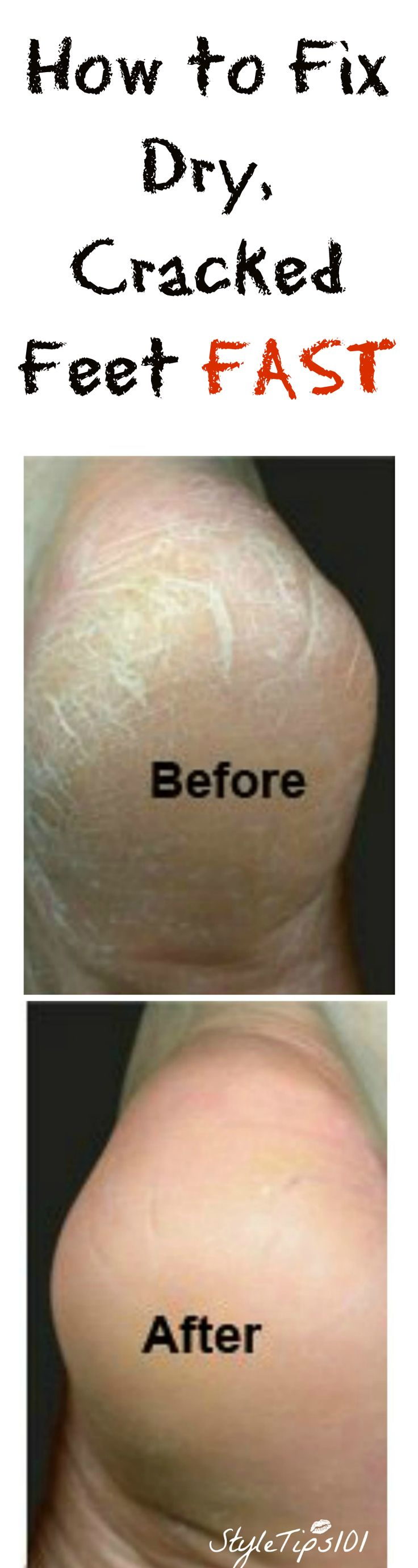 How to fix cracked feet fast! A homemade, DIY recipe for the softest skin you've EVER had!