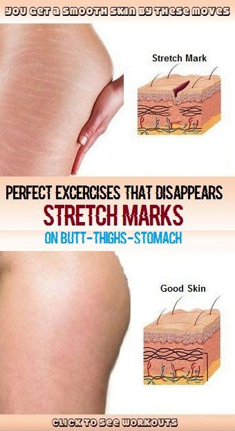 Simple and Perfect Exercises That Disappears Stretch Marks