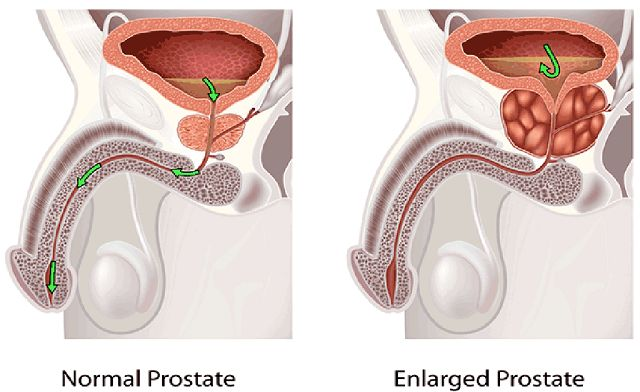 The prostate gland is near the urethra. Half of the male population over 50 has enlarged prostate problem or prostate inflammation. Causes and symptoms The