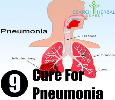 Pneumonia is a serious condition, in which the lungs get infected. People in any age group can get affected with this disease. Some common symptoms include