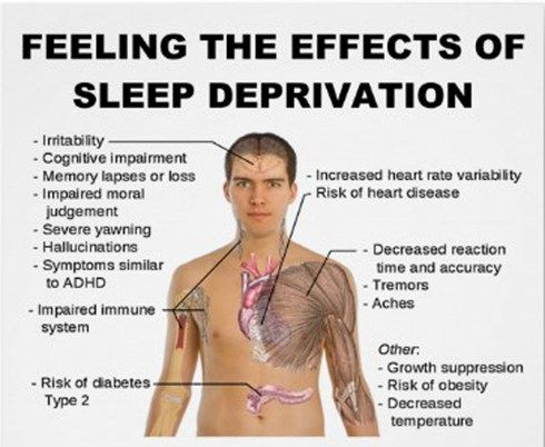 TEDMED Great Challenges: Waking Up to the Causes and Effects of Sleep Deprivation - While sleeping too few hours each night can have serious health consequences, we now know that better sleep is a tool that can be applied to many other Great Challenges of health and medicine. #Sleep_Deprivation