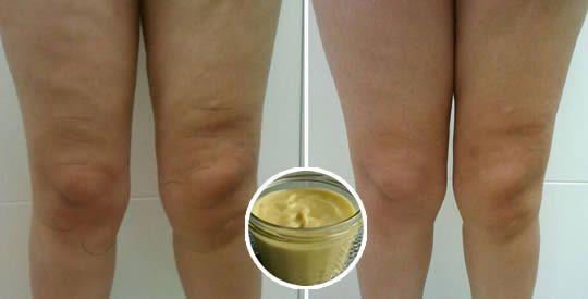 3 rimedi naturali cellulite cosce