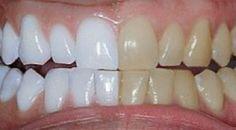 Ele misturou 2 ingredientes e passou nos dentes. O resultado: dentes brancos…