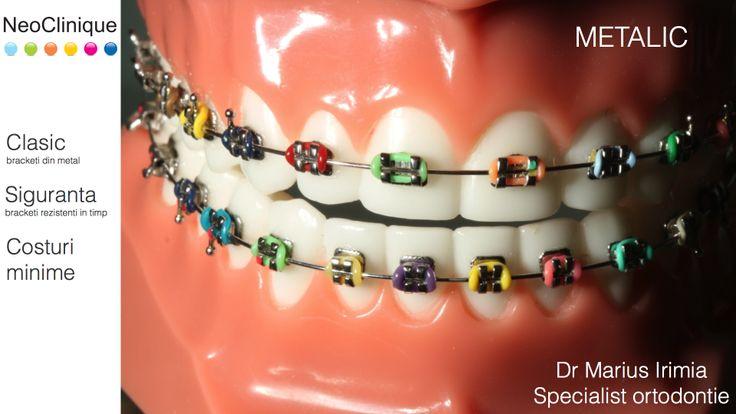 Dr. Irimia Marius, Specialist Ortodontie  Tipuri de aparate ortodontice NeoClinique INCOGNITO INVISALIGN SAFIR CERAMIC METALIC