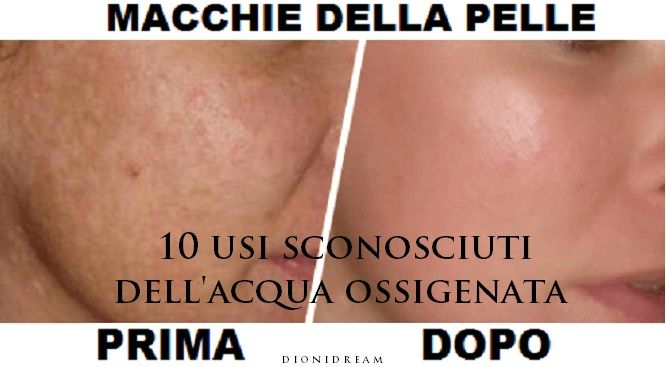 Acqua Ossigenata per Acne, Bocca, Raffreddore, Influenza