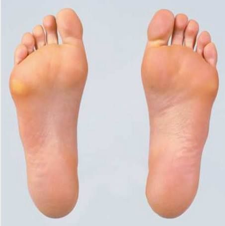 Best Natural Cure For Plantar Warts