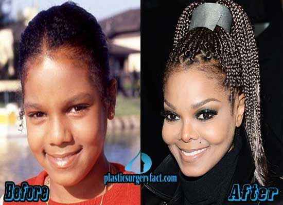 Janet Jackson Plastic Surgery Before and After