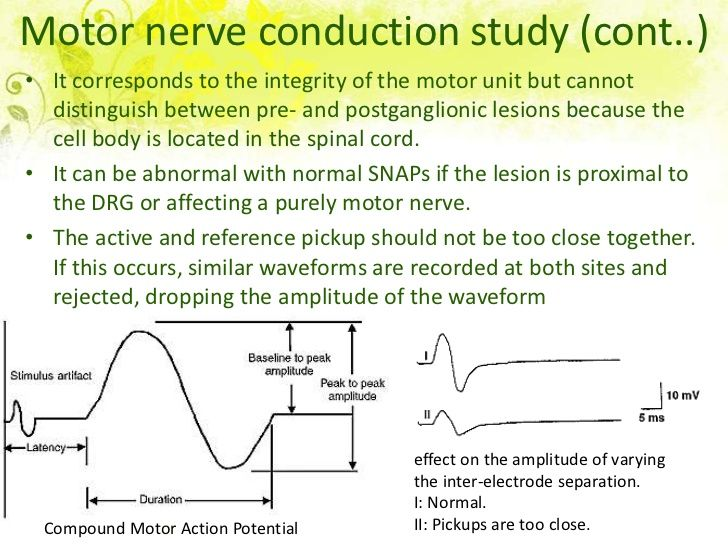 Motor nerve conduction study (cont..)• It corresponds to the integrity of the motor unit but cannot  distinguish between p...