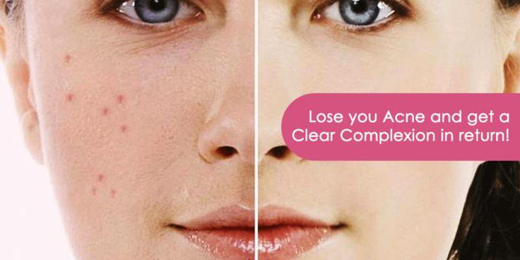 Skin Treatments India: Getting Rid Of Acne Scars - Skin Treatments India