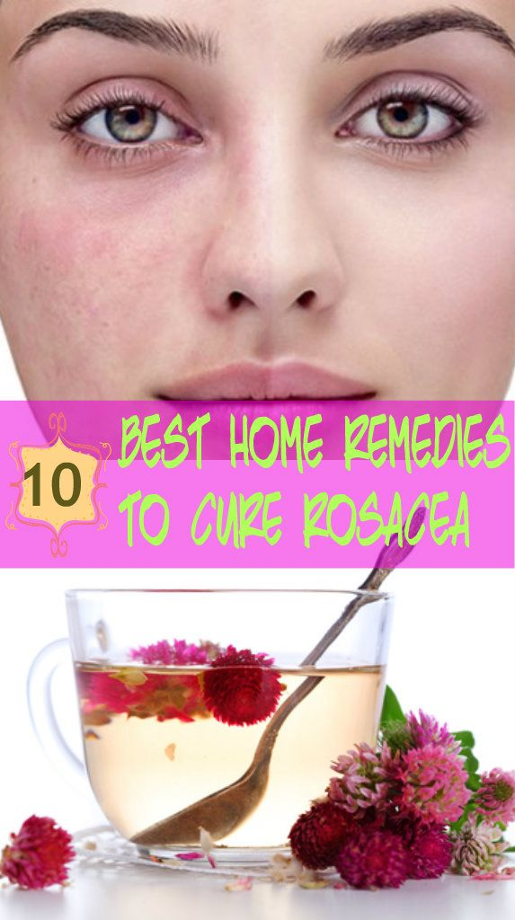 10 Best Home Remedies to Cure #Rosacea #NaturalHomeRemedies for rosacea Rosacea #NaturalTreatments