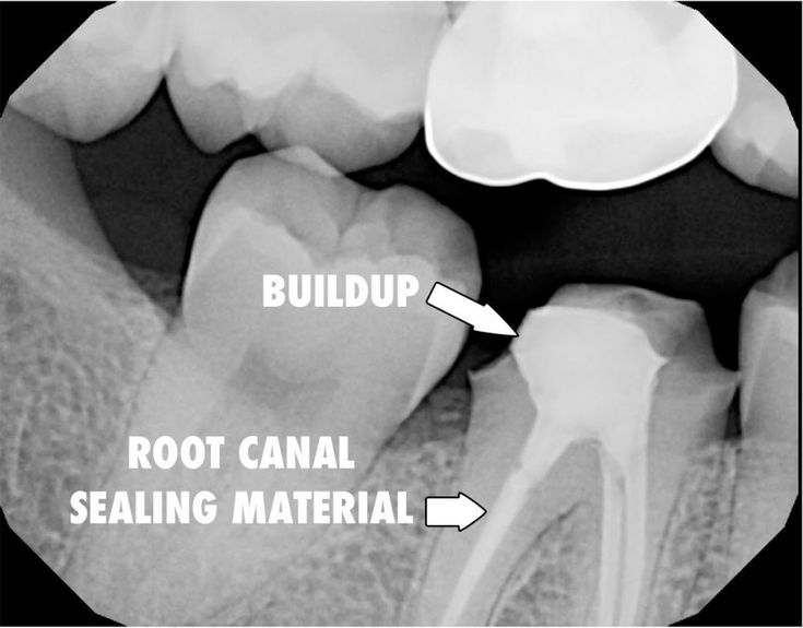 """After the root canal is completed and the tooth has """"settled down"""" (no more pain from that tooth) the patient was brought back and a """"buildup"""" (a.k.a. core or core buildup) and """"crown preparation"""" was performed. A buildup is a filling that is done in the middle segment of the tooth to seal off the roots from future reinfection and to give the tooth enough """"body"""" to make a crown on."""
