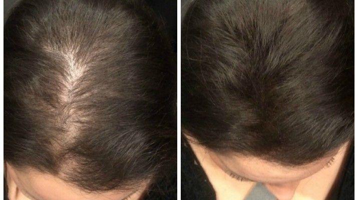 Если у вас есть проблемы с выпадением волос, попробуйте это, полностью, натуральное лечение, для него вам не потребуется дорогие средства, и вы сможете самостоятельно...