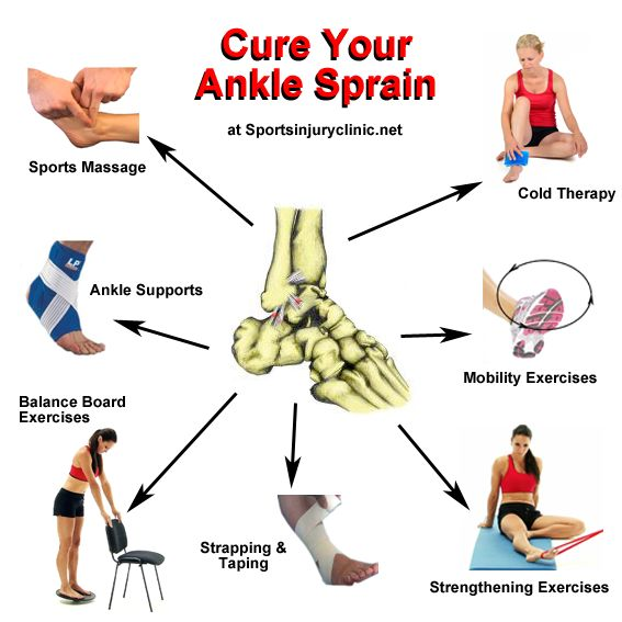 Spring Sports Injuries: Answers to 3 Important Questions Regarding Ankle Sprains