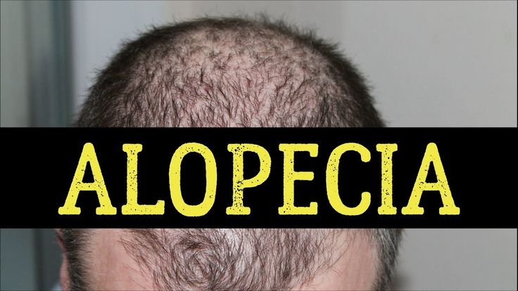 20 Best Foods For Alopecia (Hair Loss)