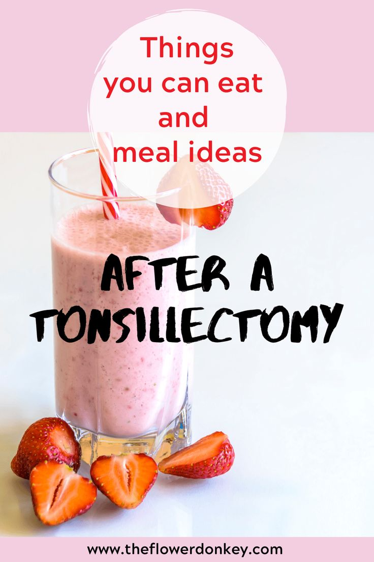Foods you can eat after a tonsillectomy in 2020 Food