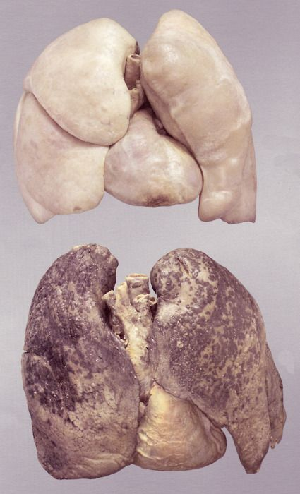 Healthy lungs (top) and smoker's lungs (bottom)...to teach them to NEVER smoke-lung disease is a horrible way to die...