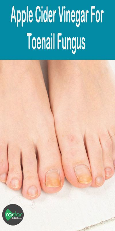 Toenail fungus is a common fungal infection that grows in moist, warm and dark environments that affects mostly on toenails and fingernails. It appears as yellow or white spots on one or more nails that