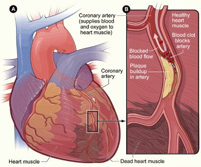 coronary heart(artery) disease otherwise known as Ischemic Heart Disease (IHD) or  cardivascular diseases.Condition that affects supply of  blood to the heart.  The blood vessels are narrowed or blocked due to the deposition of  cholesterol plaques on their walls. This reduces the supply of oxygen and nutrients to the heart musculature,which is essential for the heart functioning. This may eventually result in a portion of the heart,stop blood supply leads t