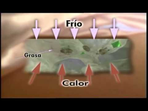 ORIGO - Gel Reductor Reafirmante - YouTube