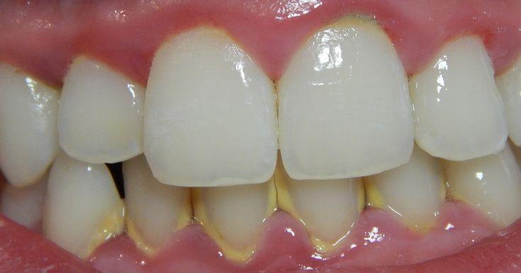 Najlepszy domowy sposób na usuwanie kamienia z zębów. Wymyślił go dentysta - Genialne