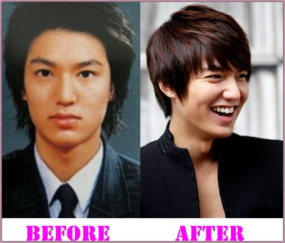 Lee Min Ho Plastic Surgery Before And After Lee Min Ho
