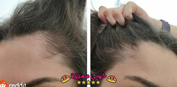 السدر لتطويل الشعر و علاج التقصف الخلطات و تجربتي قبل و بعد بالصور Ziziphus Spina Christi For Hair Length Weakness How To Use It And Reviews Hair
