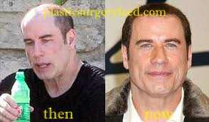 John Travolta plastic surgery might too much but he seems got so much benefit from it. Not every female celeb that falls into plastic surgery trap. Some male celebs seems addicted to plastic surgery too.