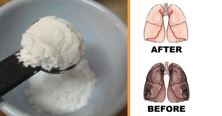 Cream of tartar will actually destroy bacteria which causes an infection, and can relatively relieve you from your UTI symptoms. To reduce the symptoms of your UTI, allyou have to do is add one and a half teaspoons of cream of tartar in a glass of warm water and add a few drops of lemon juice.Try to do this twice a day. 100 grams of cream of tartar has two milligrams of magnesium in it. According to some doctors, this means that it can effectively reduce pain caused by arthritis. Doctors…