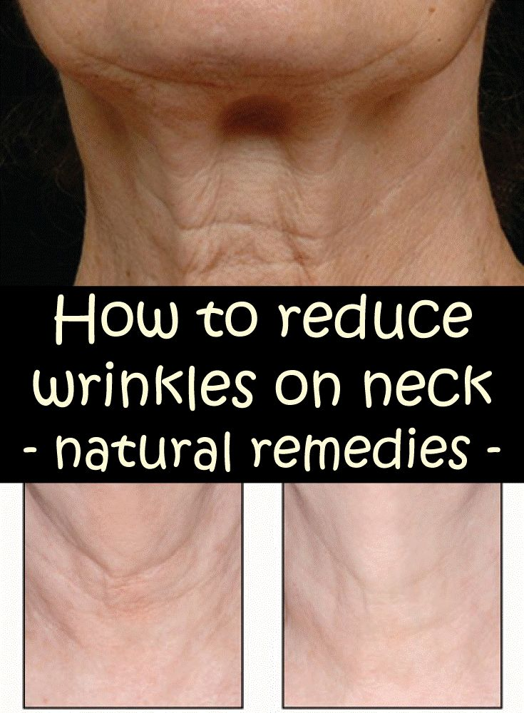 How to avoid neck wrinkles