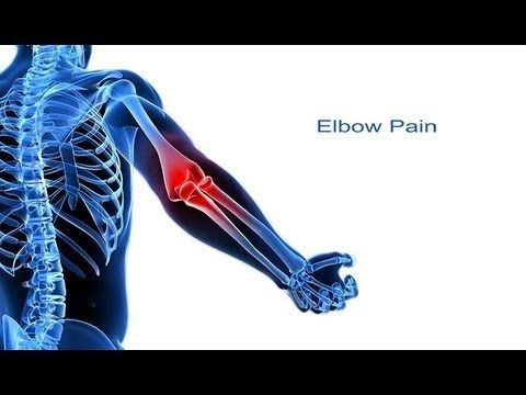 5 Steps to Elbow Pain Relief - WATCH VIDEO HERE -> http://arthritisremedy.info/5-steps-to-elbow-pain-relief/ *** how to get rid of arthritis *** Dr Saran's 5 Steps to Elbow Pain Relief Elbow pain is an extremely common complaint, and there are many common causes of this problem. It is important to make an accurate diagnosis of the cause of your symptoms so that appropriate treatment can be...