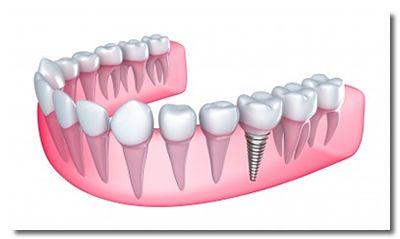 Dental Implants in Las Vegas NV