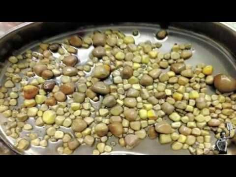 Causes, Signs and Symptoms and Treatment of Kidney Stones  https://youtu.be/BFkJm4wawOA  #kidneystones #nephrolithiasis