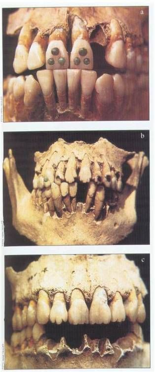 Mayan Dental Modification- because stones embedded in your teeth was all the rage.