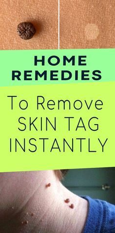 TOP 10 HOME CARE FOR THE NATURAL REMOVAL OF SKIN LABEL