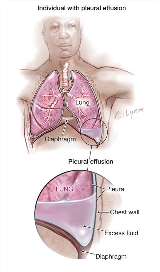 Congestive heart failure (ineffective pumping of blood through the circulatory system due to enlargement and weakening of the heart muscle) is the most common cause of pleural effusion.