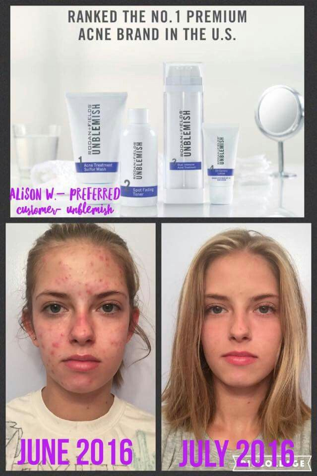 Take control of adult acne with ROdan + Fields UNBLEMISH Regimen. A complete Multi-Med® Therapy solution, the UNBLEMISH Regimen is clinically tested to help stop blackheads and pesky pimples before they become visible on skin's surface. Click through for more info!
