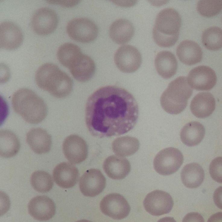 Neutrófilo vacuolado en extendido de sangre periférica.