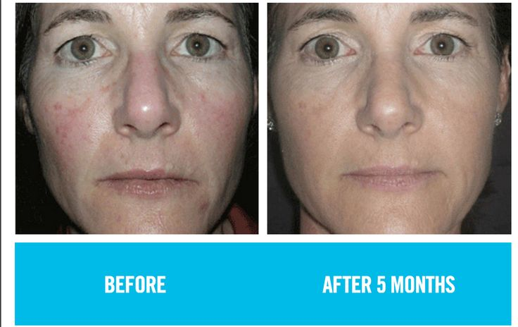 """Redefine:  """"When I started using Rodan + Feilds REDEFINE Regimen, I noticed a difference in my skin right away. If felt cleaner and smoother and looked more even. After a few months, my skin appears even toned, all the redness appears to be gone and my pores look smaller. The best part is, I no longer have to spend so much time and energy trying to cover up my skin because for the first time in my life, I actually like how I look. Thank you, Rodan + Feilds"""" Desiree"""