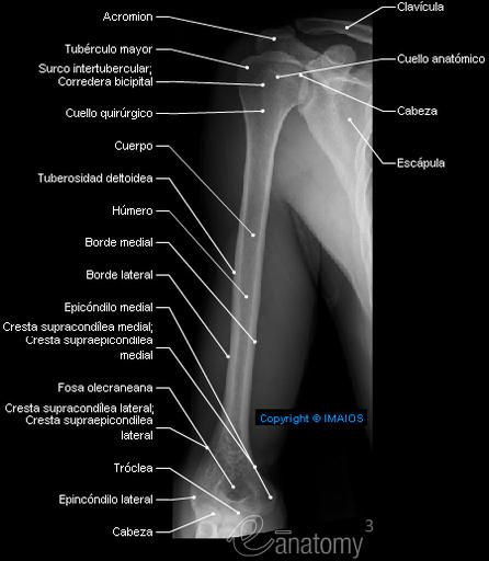 Radiography - Brazo - Húmero : Cuerpo, Cuello quirúrgico, Cresta supracondílea medial; Cresta supraepicondílea medial, Epicóndilo medial, Tubérculo mayor, Cuello anatómico