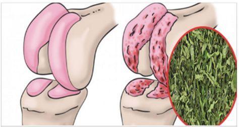 Врачи назначают перечную мяту для восстановления хряща в области тазобедренного сустава и коленей, готовя его таким образом, она эффективнее, чем любое другое лечение!