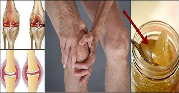 La raíz del dolor de rodilla es un daño del cartílago, por lo que esta es la forma de regenerarse naturalmente