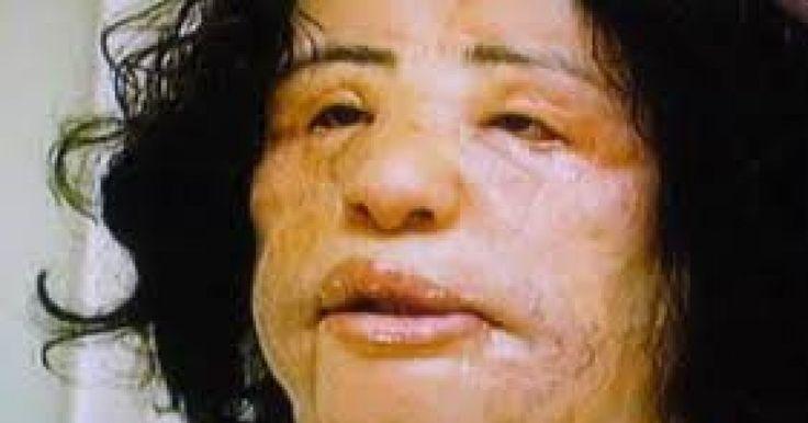Uno de los casos más famosos de cirugía plástica que salió horriblemente mal, Hang Mioku, mujer de Corea del Sur con 48 años de edad llegó a ser tan adicta a la cirugía plástica que quedó irreconocible después de que su obsesión la llevó a inyectarse aceite de cocina en su cara.