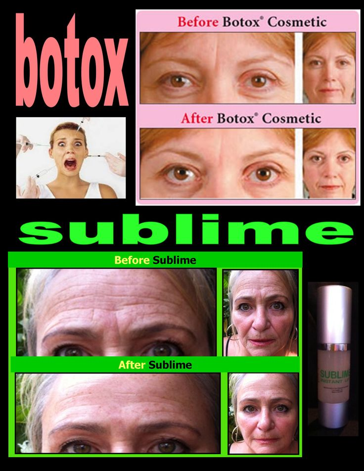 the 25 best botox injection sites ideas on pinterest face muscles anatomy facial muscles. Black Bedroom Furniture Sets. Home Design Ideas