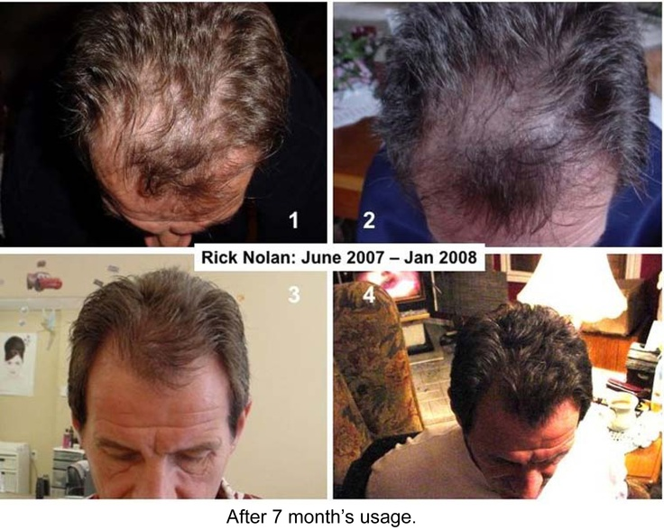 Use the Nuskin Galvanic Spa with Nurtriol Hair Products to get back a full head of hair. No need to be bald now! To find out more, email me at cindyshocklee@yahoo.com.