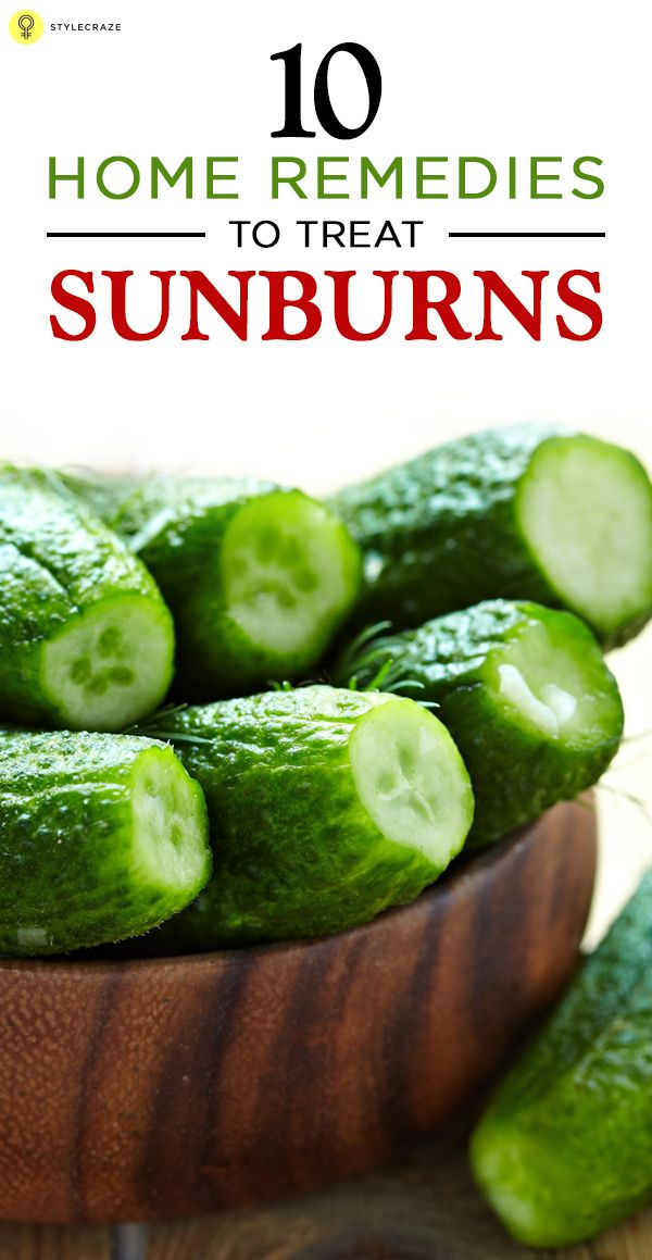 10 Simple Home Remedies To Treat Sunburns