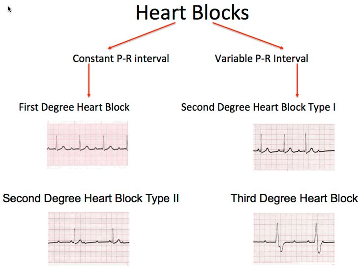 heart beats rhythm self quiz fast and Put your knowledge to the test with our awesome ecg quiz  it's really important  to understand how to read an ecg quickly and effectively  the absence of p- waves and an irregular rhythm would suggest a diagnosis of  to calculate  heart rate from an ecg you count the number of large squares in an.