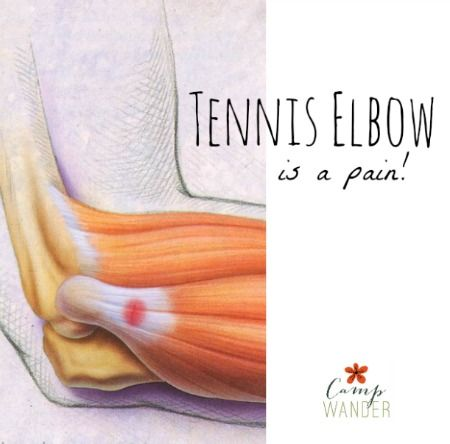 How To Treat Tennis Elbow Naturally | Improved Aging