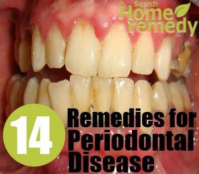 How To Get Rid Of Periodontal Gum Disease Naturally